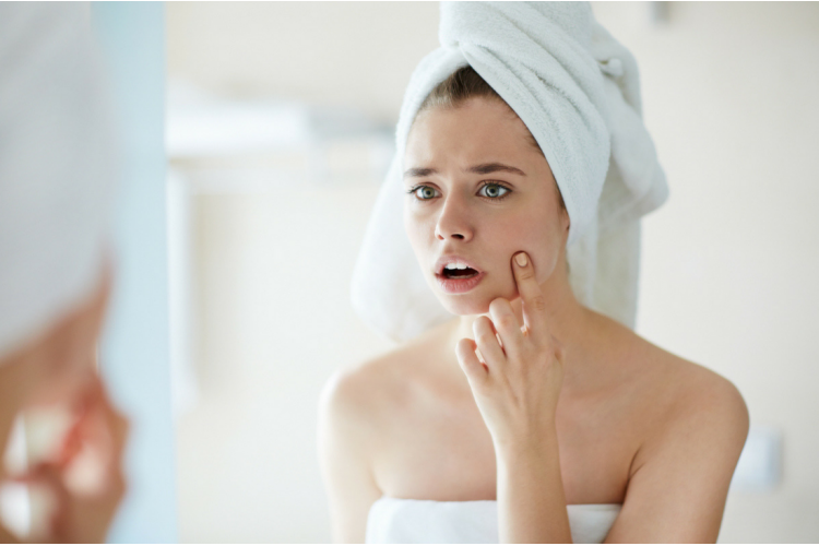Acne Treatment & Care